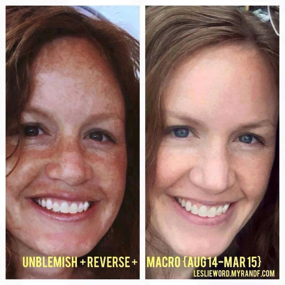 Look what consistent use of R+F products can do!!