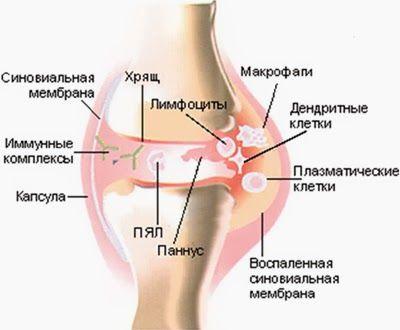 Дисплазия соединительной ткани лечение новосибирск