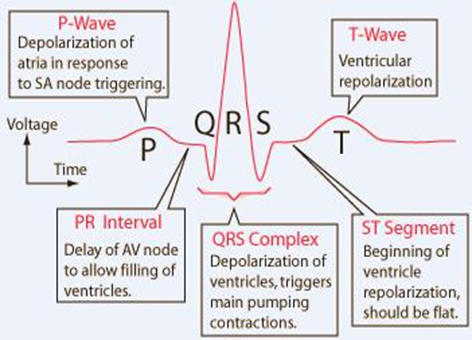 Image result for draw and label an ecg waveform | Ekg ...