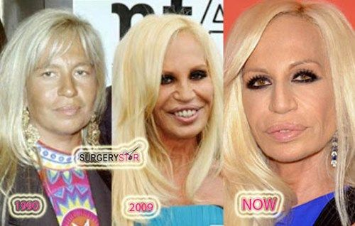 Pin By Surgery Star On Designer Bad Plastic Surgeries