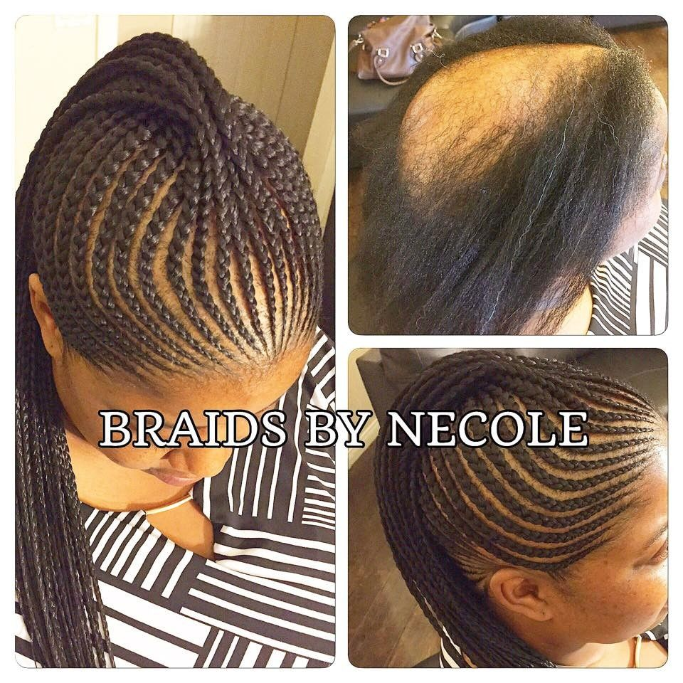14 Extraordinary Alopecia Camouflage Cornrows By Braids By Necole Hair Styles Alopecia Hairstyles Kids Braided Hairstyles