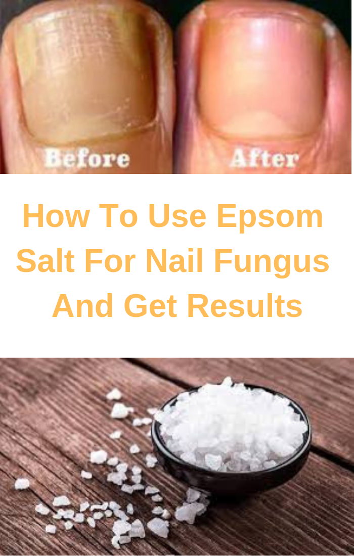 epsom salt in a bowel and toenail fungus before and after