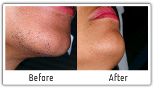 Pin On Laser Hair Removal Clinic In Delhi