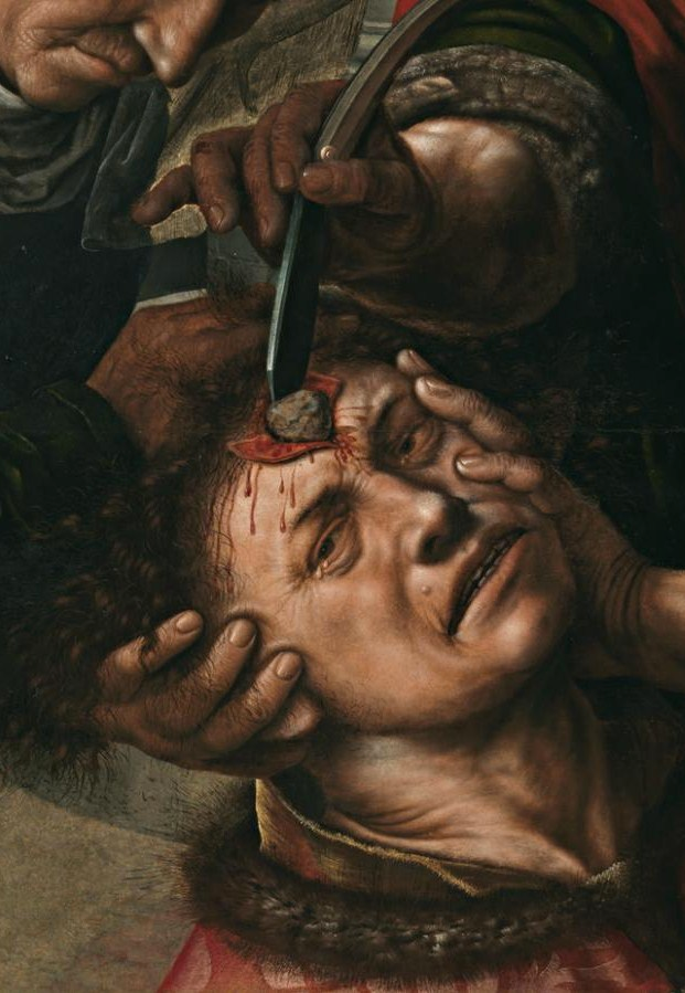 "Jan Sanders van Hemessen ""The Surgeon"" (1550-54)"
