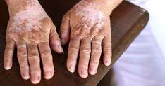 Las Manchas blancas (vitiligo) son causadas debido a la pérdida del pigmento melanina que…