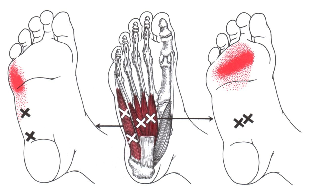 foot massage therapy diagram human long bone abductor digiti minimi the trigger point