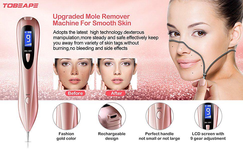 Tobeape Mole Removal Pen Portable Usb Charging Skin Tag Remover