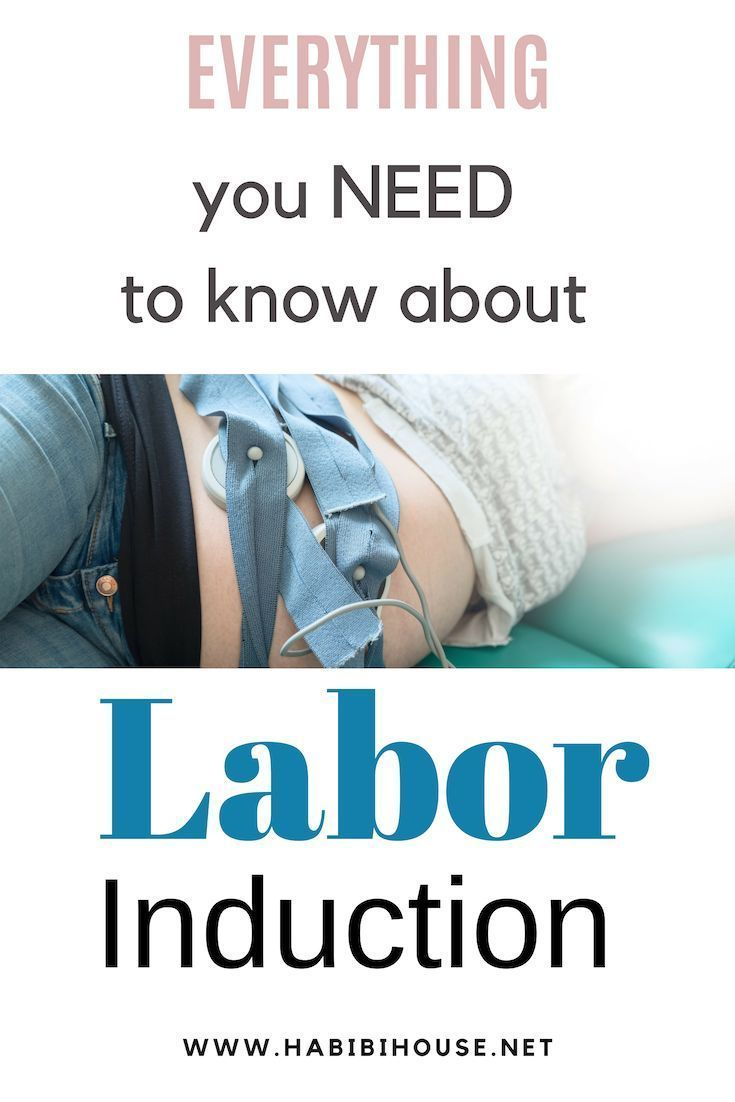 how do you prepare for labor induction