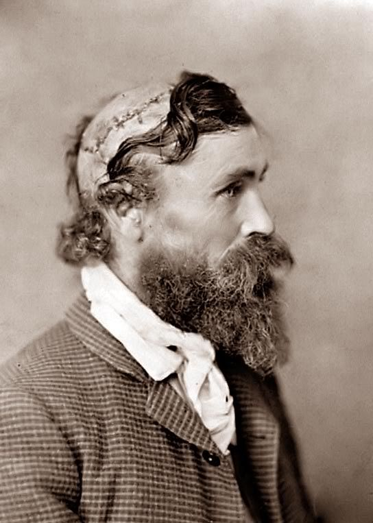 Robert McGee photograph from 1890. As a child, McGee was scalped by Indians. Very few people survived the horrific experience of being scalped. Read more here..