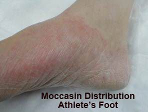 70 Of People Will Suffer From Athlete S Foot In Their Lifetime