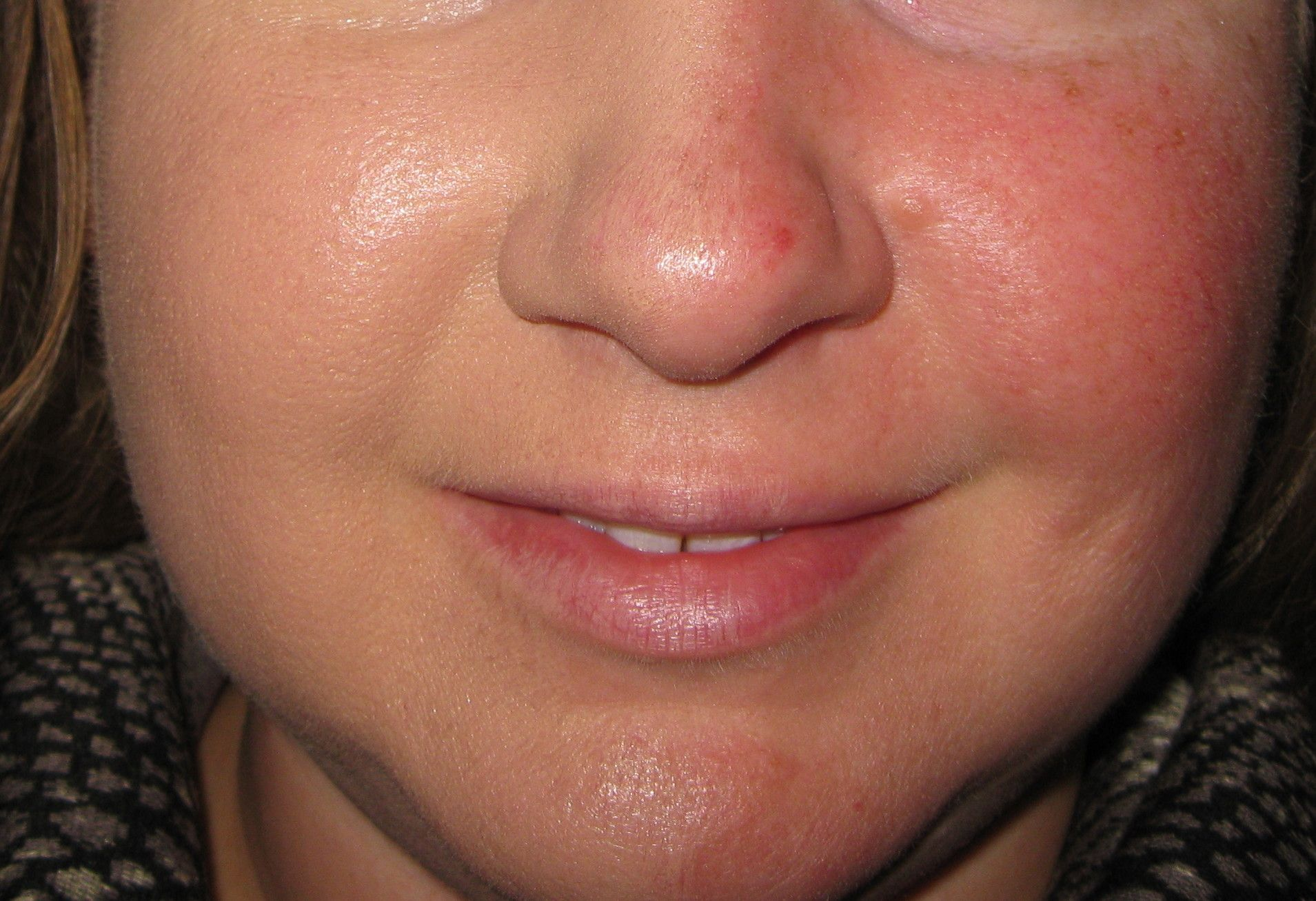 Pin by A Dose of Different on Beauty Clinique redness
