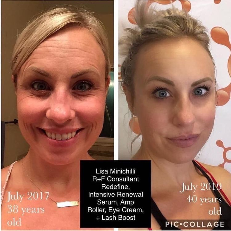 Redefine Your Skincare Routine Rodan And Fields Anti Aging Skin Care Skin Care