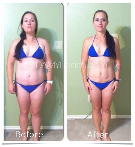 Gel slim weight loss softgel reviews photo 7