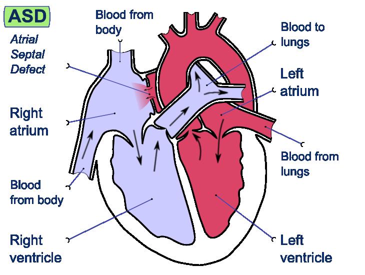 Atrial-Septal Defect (ASD). Congenital, acyanotic, heart defect in ...
