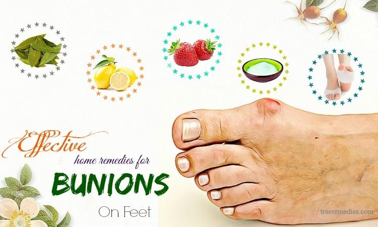 17 effective home remedies for bunions on feet bunion