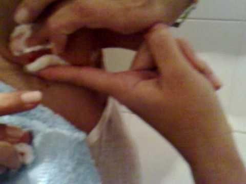 como reventar un nacido 1 - http://solucionparaelacne.org/blog/como-reventar-un-nacido-1/