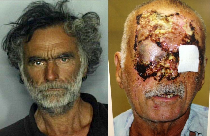 Whoa Post Surgery Photo of Miami Zombie Victim Released The