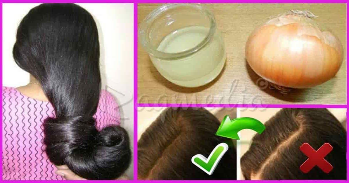أسرع وأقوى وصفة لتطويل الشعر بسرعة فائقة لن تصدقي النتيجة Onion Hair Treatment Onion For Hair Hair Treatment
