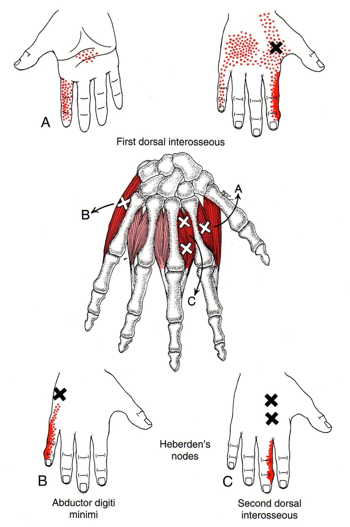 First dorsal interosseus the trigger point referred pain guide related trigger point and referred pain diagrams for thumb radial hand pain relevant primary and secondary muscles are shown pooptronica