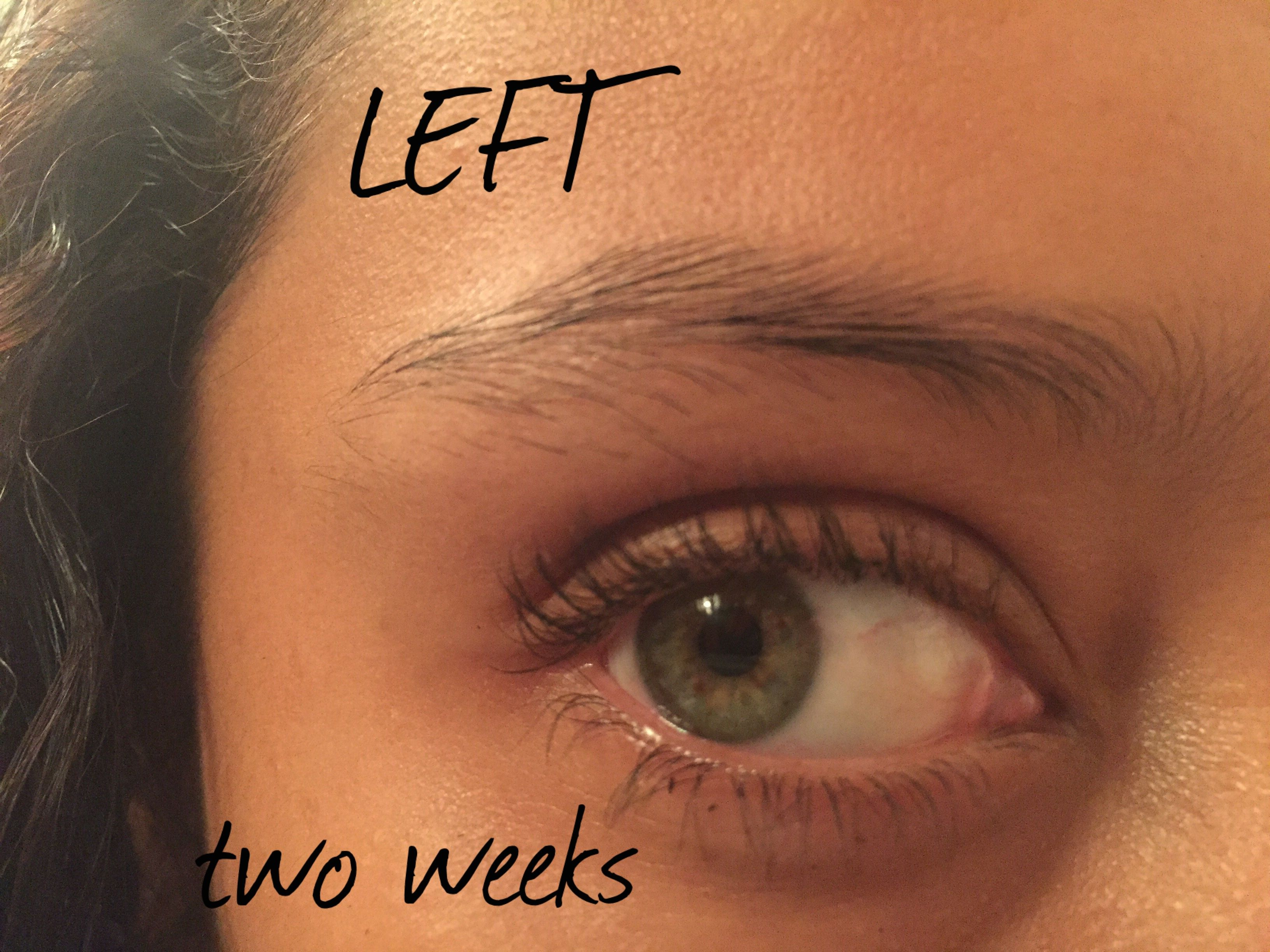 This Is The Right Eyebrowpost Up After Two Weeks This Past Week