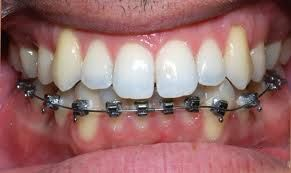 For beautiful smile visit http://www.fberubeortho.com/quebec/