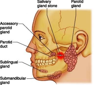 Home Remedies For Salivary Gland Swelling