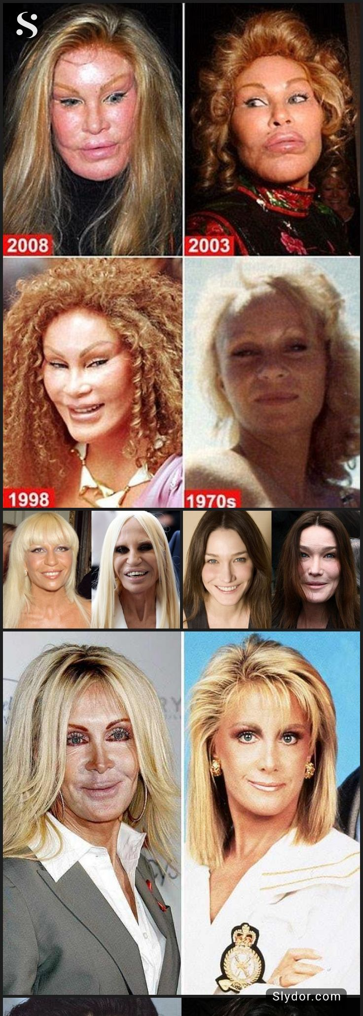 how horrible can one look? scary celebrity plastic surgery fails
