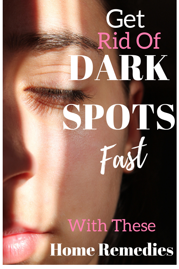 5 Best Dark Spot Home Remedies | Best of Living Youthful and