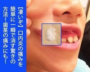 凄いぞ 口内炎の痛みを簡単に一瞬で消す驚きの方法 歯茎の痛みにも 健康技1 Home Health Health Fitness Body Care