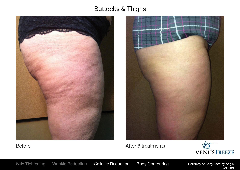 Beauty detox probiotics review photo 7