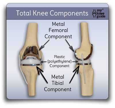 The Knee Prosthesis The Different Types My Knee Guide