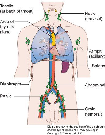 diagram showing the position of the diaphragm and the ... diagram for lymphoma staging #6