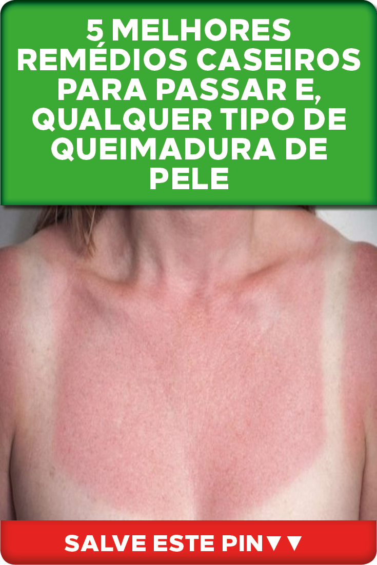 Pin On Dicas Simples