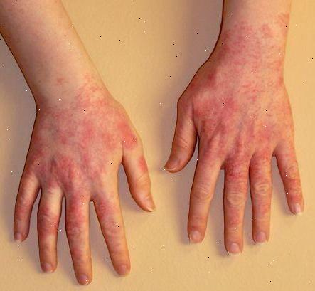 allergisk reaktion hud