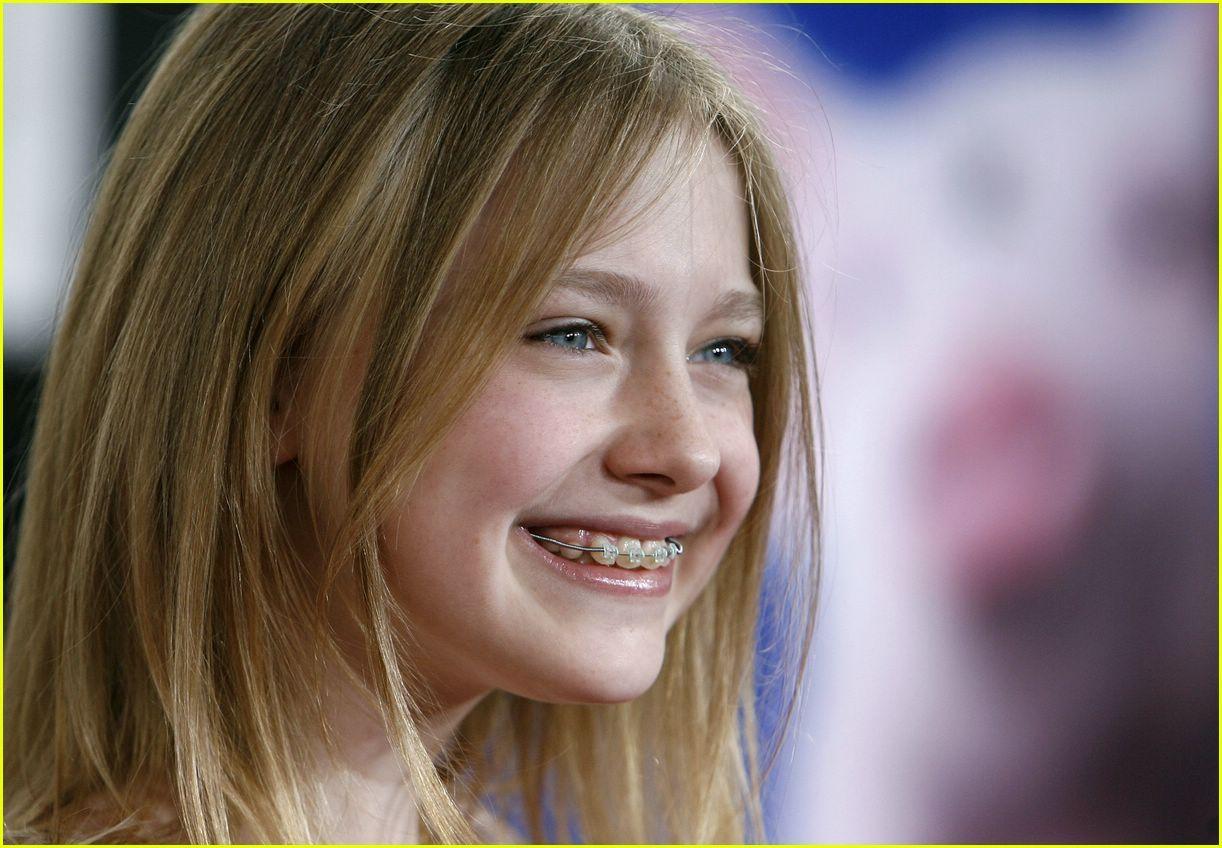 копировании девки с кривыми зубами фото несколько