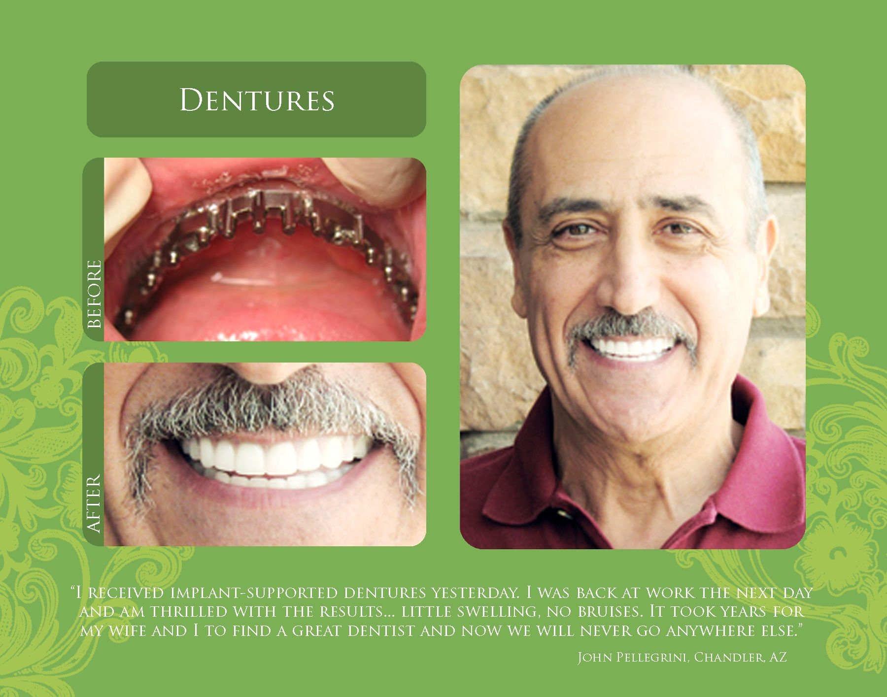 before and after picture of implant retained denture