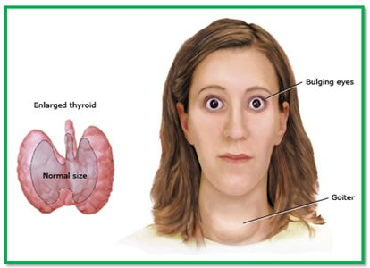 hyperthyroidism is a disorder in which there is a increased, Cephalic Vein