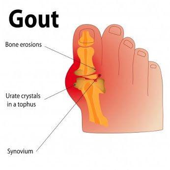 synovitis arthrosis kezelés