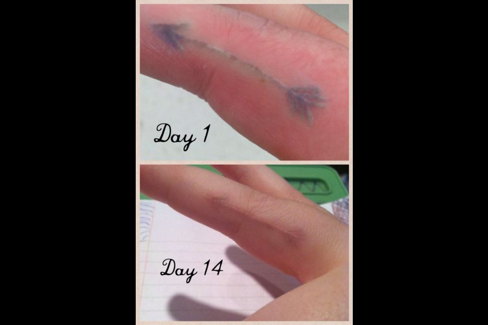 4a9356e25 White ink arrow tattoo day 1 and day 14. Scared me at first because of the  grey, but it turned out great