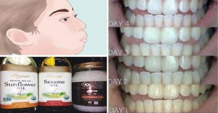 Como Este Oleo Pode Clarear Seus Dentes E Deixar As Gengivas Muito