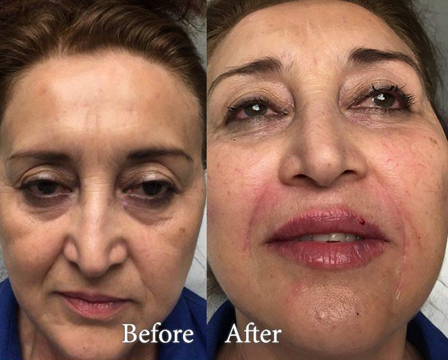 Dermal Filler - Laugh Lines | Dermal Filler Injection ...