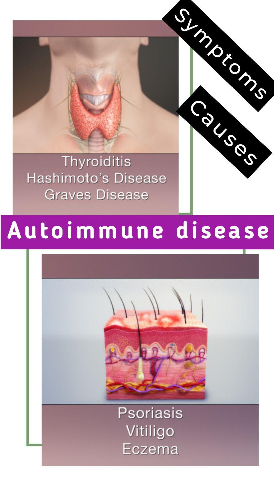 What is Autoimmune disease Symptoms, Causes & remedies in
