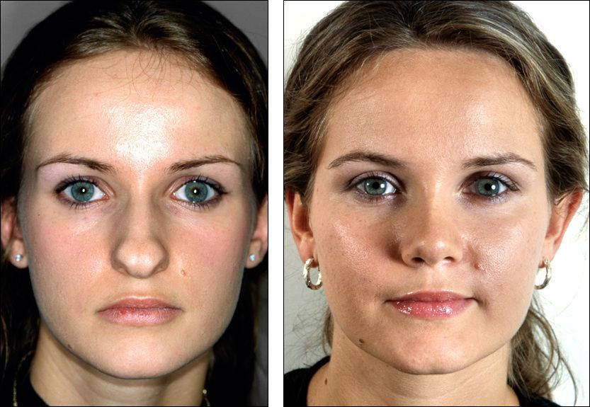 "Nose Reshaping (Rhinoplasty) Or A ""Nose Job"" Is Concerned"