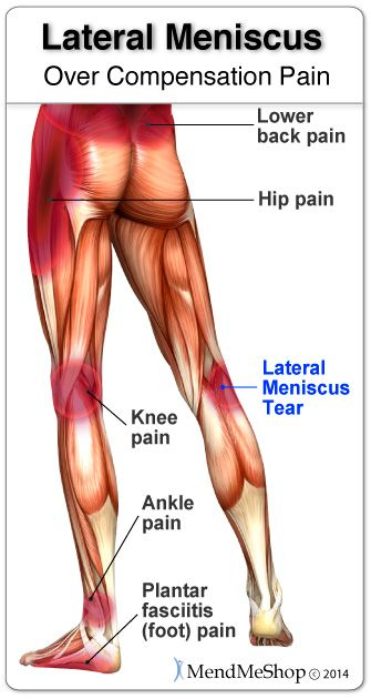 Overcompensation pain can result in a severe setback when recovering overcompensation pain can result in a severe setback when recovering from a torn medial meniscus ccuart Images