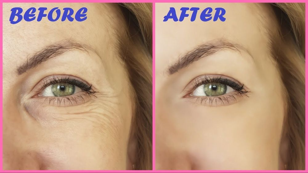 Remove Under Eye Wrinkles Fine Lines Permanently In 1 Week At Home Youtube Under Eye Wrinkles Eye Wrinkle Remove Eye Wrinkles