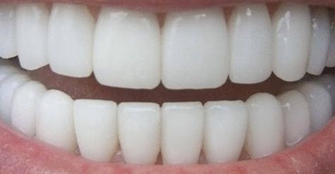 Como Fazer Clareador De Dentes Caseiro Clareador De Dentes