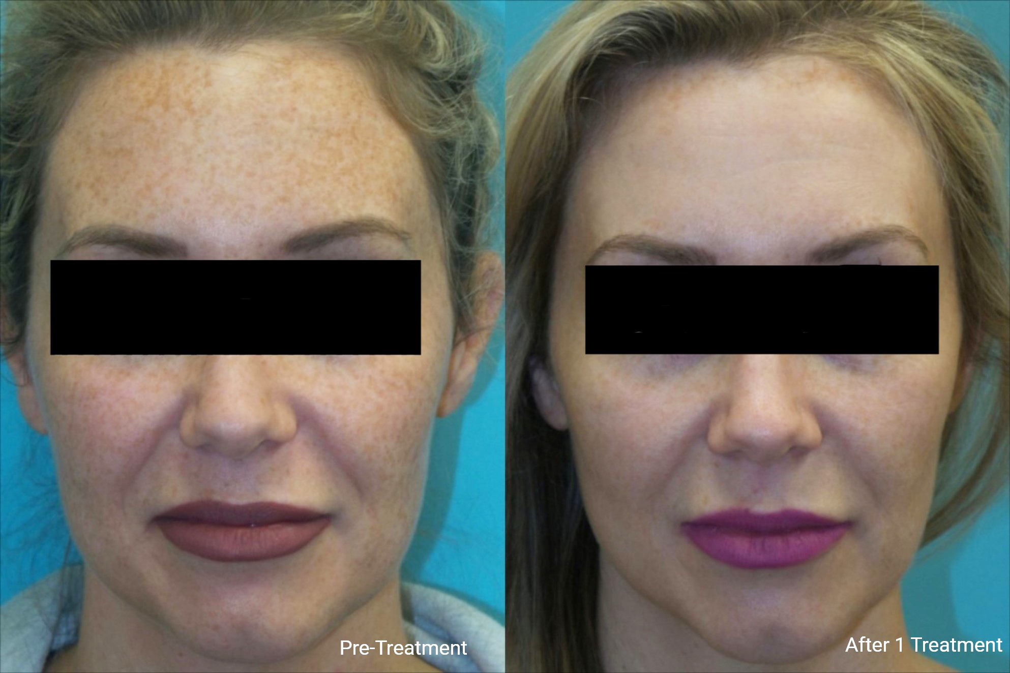 Stacy's favorite thing is Photo Facial! Intense Pulsed Light (IPL