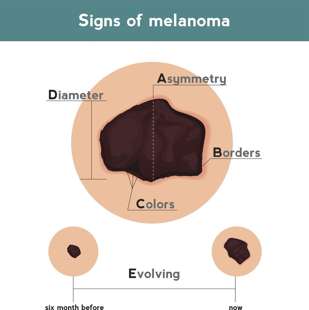 Schwarzer Hautkrebs Skin Cancer Cancer Health