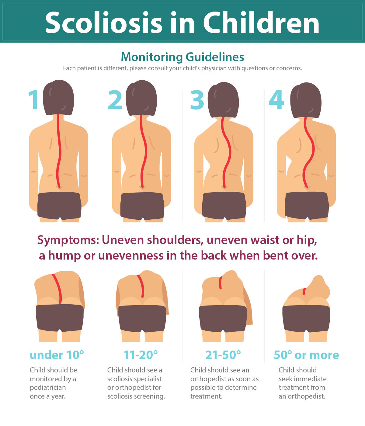 Pin on What is Scoliosis?
