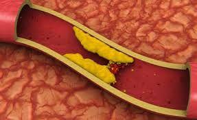 Ինչպե՞ս նվազեցնել խոլեստերինի մակարդակն արյան մեջ ժողովրդական միջոցներով: Այս խնդիրն առաջնահերթ է շատ-շատերի համար: Սակայն պետք է նախ իմանալ, թե ինչի համար է խոլեստերինն օրգանիզմում: Հասկանալի է, ...